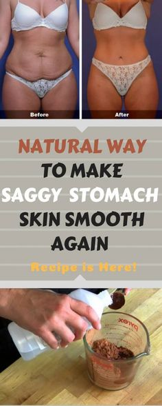 Women who gave childbirth or people who lost a lot of weight in a short period of time often end up with loose skin, mostly on their stomach. This happens because they are losing weight faster than the skin can shrink.NATURAL WAY TO MAKE SAGGY STOMACH SKIN SMOOTH AGAIN