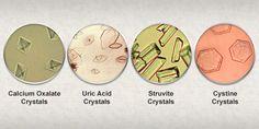 Urinary+crystals | Urinary crystals (crystalluria) « Pet Food Nutrition