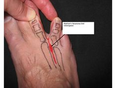 Is Morton's Neuroma Causing Your Foot Pain?: Foot with a third interspace Morton's neuroma labeled and outlined in red.