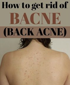 Learn how to get rid of bacne (back acne).