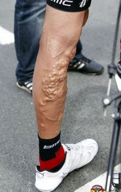 Cyclists leg after Tour De France. - Imgur  Please follow us @ http://www.pinterest.com/wocycling