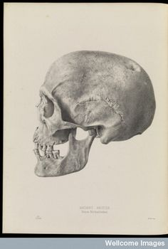 Drawing of a human skull, in profile