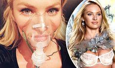 Candice+Swanepoel+is+battling+flu+DAYS+before+Victoria's+Secret+show
