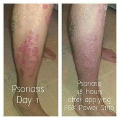 Wonderful results for a Psoriasis sufferer with the use of PowerStrips! Varicose Veins, Pain Relief, Health And Wellness, How To Apply, How To Wear, Power Strips, Migraine, Spider, Board