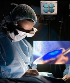 Special Glasses Help Surgeons 'See' Cancer by sciencedaily: A fluorescent marker injected into the patient and special lighting made cancer cells glow blue when viewed with the technology. The lighter the shade of blue, the more concentrated the cancer cells are. Tumors as small as 1mm in diameter can be detected. Image by Robert Boston, Washington University School of Medicine #Medical_Technology #Biomedical_Optics #Cancer