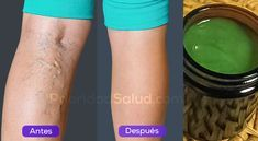 Las varices son esas venas en forma de añitas que aparecen en tus piernas. Puedes notar algunos vasitos dilatados que se forman debajo de tu piel.\r\n\r\n\r\n\r\nLas varices se deben a la mala circulación. Suelen ser de color oscuro y hacen que las piernas se vean poco atractivas. Además de molestas, las varices son dolorosas y te impiden vestirte como te gusta.\r\n\r\n[ad]\r\nEste remedio junto a una buena alimentación y algo de ejercicios eliminará las varicesy arañitas de tus piernas…
