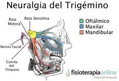 316-Neuralgia del trigémino