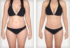 Liposuction is a cosmetic surgery procedure in which the doctor removes fat and sculpts your body. Find out how we can reinvent your body with liposuction. Contact us for liposuction treatment in Houston,TX and book an appointment today! How I Lost Weight, How To Lose Weight Fast, Weight Loss Help, Healthy Weight Loss, Losing Weight, Healthy Food, Liposuction Cost, Double Menton, Simple Stories