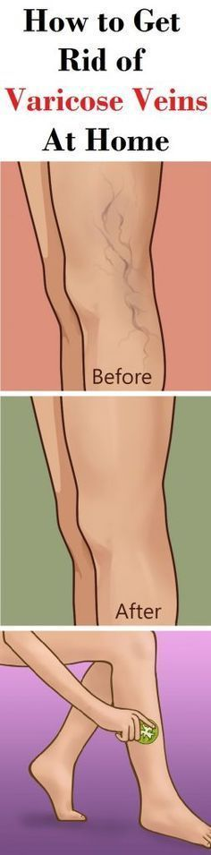 Varicose veins are bluish veins which suddenly show up, ache, and make wearing short shorts or dress one second guess.