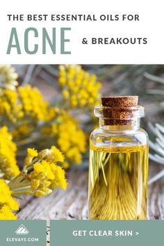 Clearing Up Problem Skin: Top Essential Oils for Acne - Elevays Essential Oils For Thyroid, Essential Oils For Skin, Best Oil For Skin, Sensitive Acne Prone Skin, Detox Bath Recipe, Easential Oils, Natural Acne Remedies, Acne Face, Acne Skin