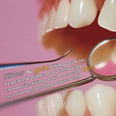 Silver & gold fillings can be replaced with a natural-looking composite filling, which are nearly 90% as strong as healthy, natural teeth.