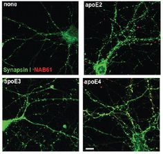 Newly identified role for ApoE explains its effects in Alzheimer's.