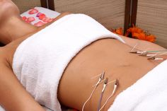 Acupuntura estética para grasa localizada. Acupuncture for localized fat.