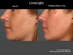 Photofacial treatment uses intense pulsed light (IPL) to resurface the skin. This light based treatment evens out brown spots, reduces broken capillaries and boosts collagen. Skin Treatments, Best Natural Skin Care, Organic Skin Care, Laser Skin Rejuvenation, Intense Pulsed Light, Sun Damaged Skin