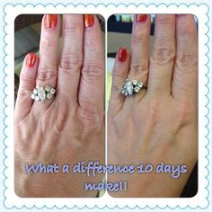 The hands have it. Before and Afters with Rodan and Fields Redefine hand treatment. Amazing! https://jaclynward.myrandf.com/Shop/Product/AAHR001
