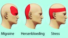 Shiatsu Massage – A Worldwide Popular Acupressure Treatment - Acupuncture Hut Acupuncture, Getting Rid Of Migraines, How To Relieve Headaches, Migraine Relief, Migraine Headache, Severe Headache, Tension Headache, Gewichtsverlust Motivation, Headache Remedies