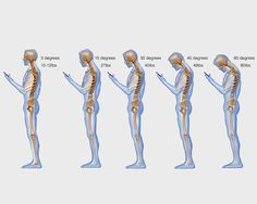 Here's What Texting Really Does to Your Spine  http://www.womenshealthmag.com/health/texting-posture