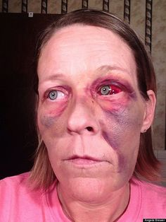 The Face of Domestic Violence - It takes courage to stand up to domestic abuse, especially if you're afraid for your life. A woman from Tennessee posted the results of an attack by her ex-boyfriend to help raise awareness.