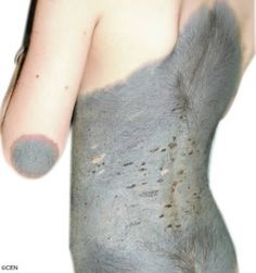 """A six-year-old girl has baffled medics after her skin apparently turned her into """"cow hide"""" girl. Until just a few months ago, Li Xiaoyuan had just a small birthmark on her back.    However, the hairy hide has apparently grown until it now spreads over her entire back and is starting to grow on her arms and face."""