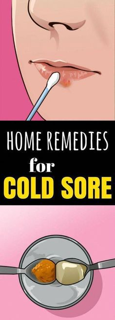 Clear Up A Cold Sore & 1 dieser 5 Hausmittel … ! Clear Up A Cold Sore & 1 dieser 5 Hausmittel … ! Foot Warts, Warts On Hands, Warts On Face, Home Remedies For Warts, Cold Home Remedies, Natural Remedies, Get Rid Of Warts, Remove Warts, Skin Tag Removal