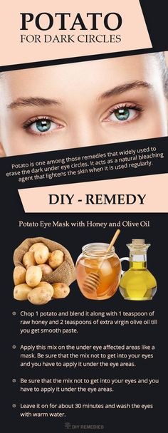 Potato simple home remedy for dark circles under eyes, Potato consists of natural bleaching agents, which will help to lighten the dark circles and remove the puffiness near the eyes. #eyecreamsforpuffiness