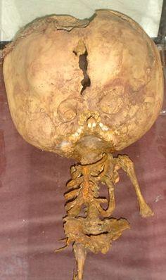 Esqueleto de Et