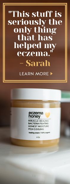 Want to live your life without the daily struggles of eczema? Made with pure honey and grated beeswax, Eczema Honey is safe, non-toxic and super effective at controlling the itch. Try our 100 all natural organic honey healing cream today! Eczema Remedies, Health Remedies, Home Remedies, Natural Cures, Natural Healing, Health And Beauty Tips, Health And Wellness, Pure Honey, Shopping