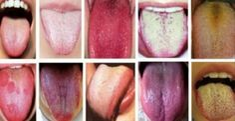 A cor da sua língua pode revelar como está sua saúde. Aqui está o que você precisa saber | Cura pela Natureza