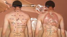 Cupping has become a part of the practice of many massage therapists and other alternative health practitioners. The method includes heating up small glass cups and then putting them on the skin. Cupping Points, Hijama Cupping, Cupping Therapy, Acupuncture Points, Acupressure Points, Massage Therapy, Benefits Of Cupping, Massage Benefits, Alternative Therapies