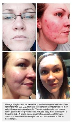 Herbalife SKIN products have literally changed my life! I have battled with poor skin since I was 12 years old! I have tried everything under the sun spending 1000's of dollars (not exaggerating) in products trying to get that clear healthy skin I have desired my hole life! I started Herbalife skin feeling VERY skeptical! Little did I know it would change my hole life! Since starting the Herbalife skin products my skin has cleared up dramatically, and I look and feel amazing! I love…