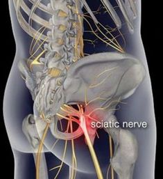 Arthritis Remedies Hands Natural Cures - Want to cure that sciatica pain for good? Heres the top 5 remedies you definitely should consider. QUESTION: What natural remedies can help with - Arthritis Remedies Hands Natural Cures Sciatica Pain Relief, Sciatic Pain, Sciatic Nerve, Nerve Pain, Treating Sciatica, Sciatica Symptoms, Arthritis Remedies, Massage Therapy, Health And Fitness