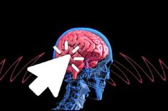 8 Things That Triggers The Risk Of Ruptured Brain Aneurysm - YOUR DAILY JOURNAL