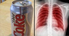 This Is What Happens to Your Lungs, Brain, Kidneys, Teeth and Mood When You Drink Diet S...