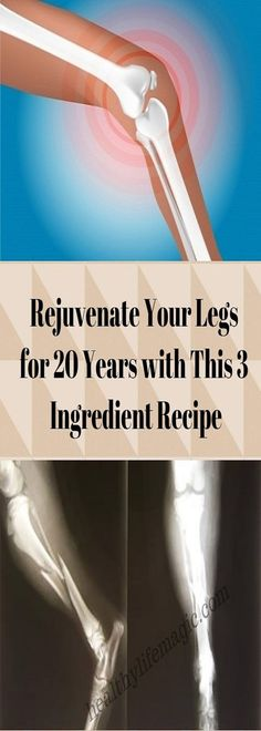 Rejuvenate Your Legs for 20 Years with This 3 Ingredient Recipe   Healthy Life Magic