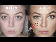Enjoy my tear trough filler experience! I know it's not as much of a common injection so hopefully it's useful for some of you! Under Eye Fillers, Face Fillers, Face Injections, Hyaluron Filler, Hyaluronic Acid Fillers, Tear Trough, Botox Before And After, Facial Anatomy, Face Change