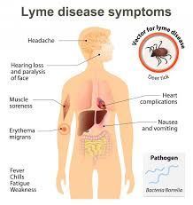 Lyme Disease is a multisystem illness. My post explains...