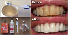 Plaque is the colorless, sticky film of bacteria which accumulates on the teeth. If left untreated, it continues to buildup and hardens into tartar, leading to gingivitis, or inflammation of the gum tissue. Gum Health, Teeth Health, Healthy Teeth, Dental Health, Oral Health, Health Tips, Healthy Food, Health Benefits, Dental Care