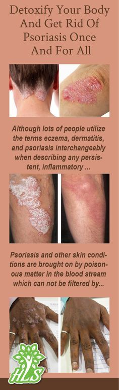 Contrary to common belief, psoriasis is treatable and natural solutions are readily available. The only thing that matters is being pointed in the best instructions!