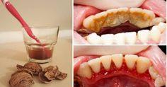 Dental plaque, tartar and bleeding gums are part of the .- Tandplak, tandsteen en bloedend tandvlees behoren tot het verleden dankzij walno… Dental plaque, tartar and bleeding gums are a thing of the past thanks to walnuts, GREAT! Health Remedies, Home Remedies, Natural Remedies, Gum Health, Oral Health, Bad Breath, Health Advice, Dental Care, Healthy Tips