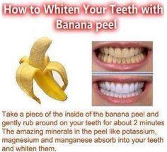 White teeth :)