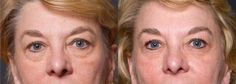Wow! That was an easy 5-10 years off her face in about 60 days using the anti-aging regimen.