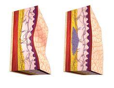 Medical Illustrator Gerad Taylor