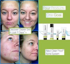 Looking for 10 women to be on my test panel for the new Clear Proof Acne system!! Message me to learn more. Refer a friend and receive a free gift!! Please feel free to share this post for me!!