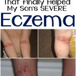 After trying all sorts of creams, essential oils, etc, we FINALLY found something that took away my son's eczema!