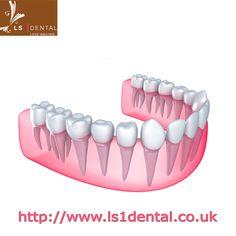 Leeds Orthodontist, Leeds, West Yorkshire . Fore Details Visit: http://www.ls1dental.co.uk/