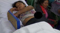 Huánuco: Niña se incrusta juego de tuercas de 'Esto es Guerra' en el abdomen