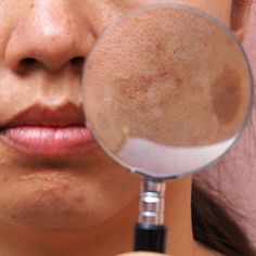melasma Plastic Surgery, Beauty, Clinic, Gifs, Brown Spots On Face, Dark Patches On Skin, Facial Aesthetics, Avocado Face Mask, Vinegar
