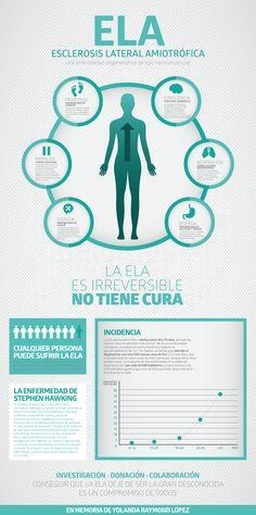 La #infografía sobre la #ELA (Esclerosis Lateral Amiotrófica) ya esta publicada…