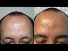 HLC www.hairtransplantcenter-turkey.com Turkey Istanbul - Ankara 400 Grafts FUE - Eyebrows