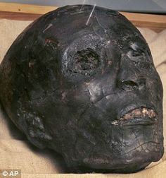 The boy king Tutankhamun's mummified head. Cause of Tut's death has been attributed to the fact that he had Malaria as well as a badly broken leg and possible infection at his time of death.
